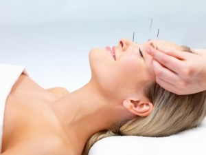 Face Lift Acupuncture