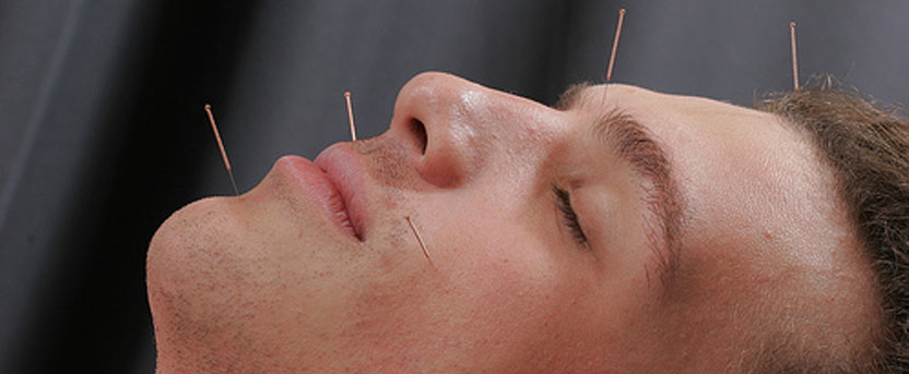 acupuncture_