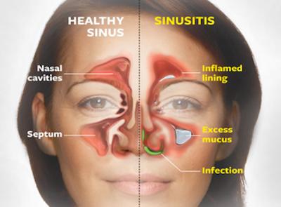 ontstoken sinussen behandeling
